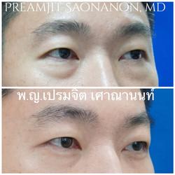 ผ่าตัดถุงใต้ตาในผู้ชาย