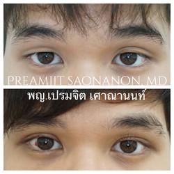 ตาสองชั้นในผู้ชาย
