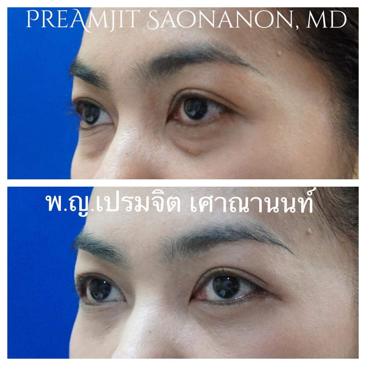 ผ่าตัดถุงใต้ตาทางเยื่อบุตาและย้ายไขมัน