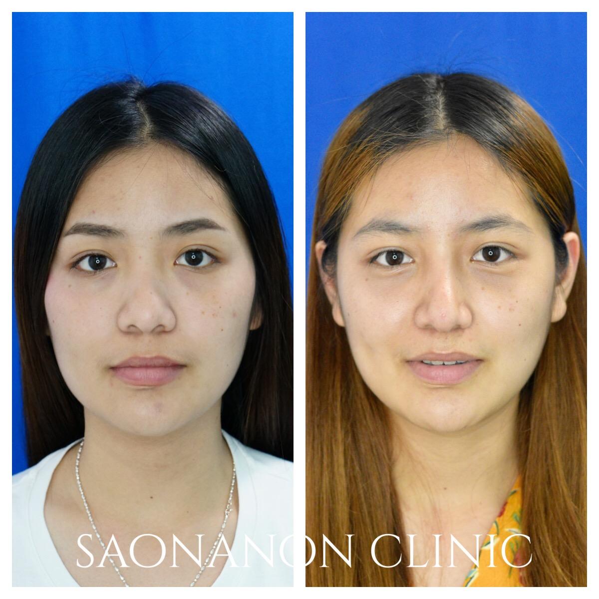 Blunt tip and large nasal bone
