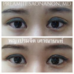 แก้ไขชั้นตาสูงจากการผ่าตัด