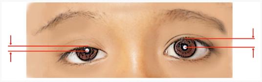 แก้ตา ทำตาสองชั้น หนังตาตก กล้ามเนื้อตา