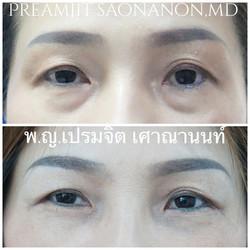 ผ่าตัดถุงใต้ตาซ้อนแผลและย้ายไขมัน