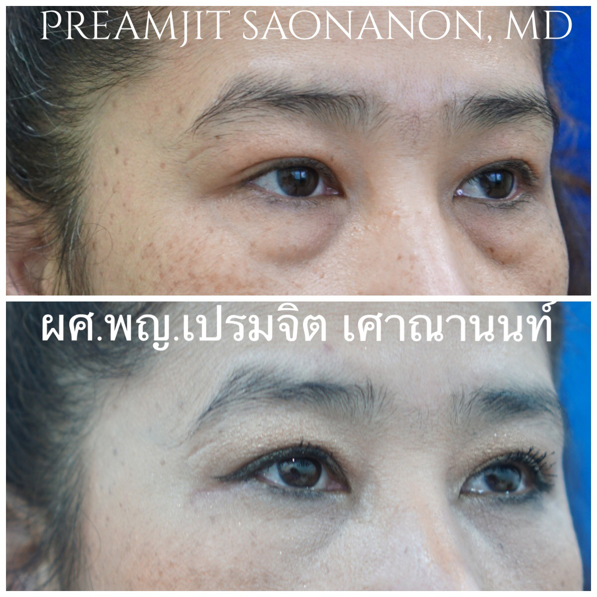 ผ่าตัดถุงใต้ตาและย้ายไขมันใต้ตา