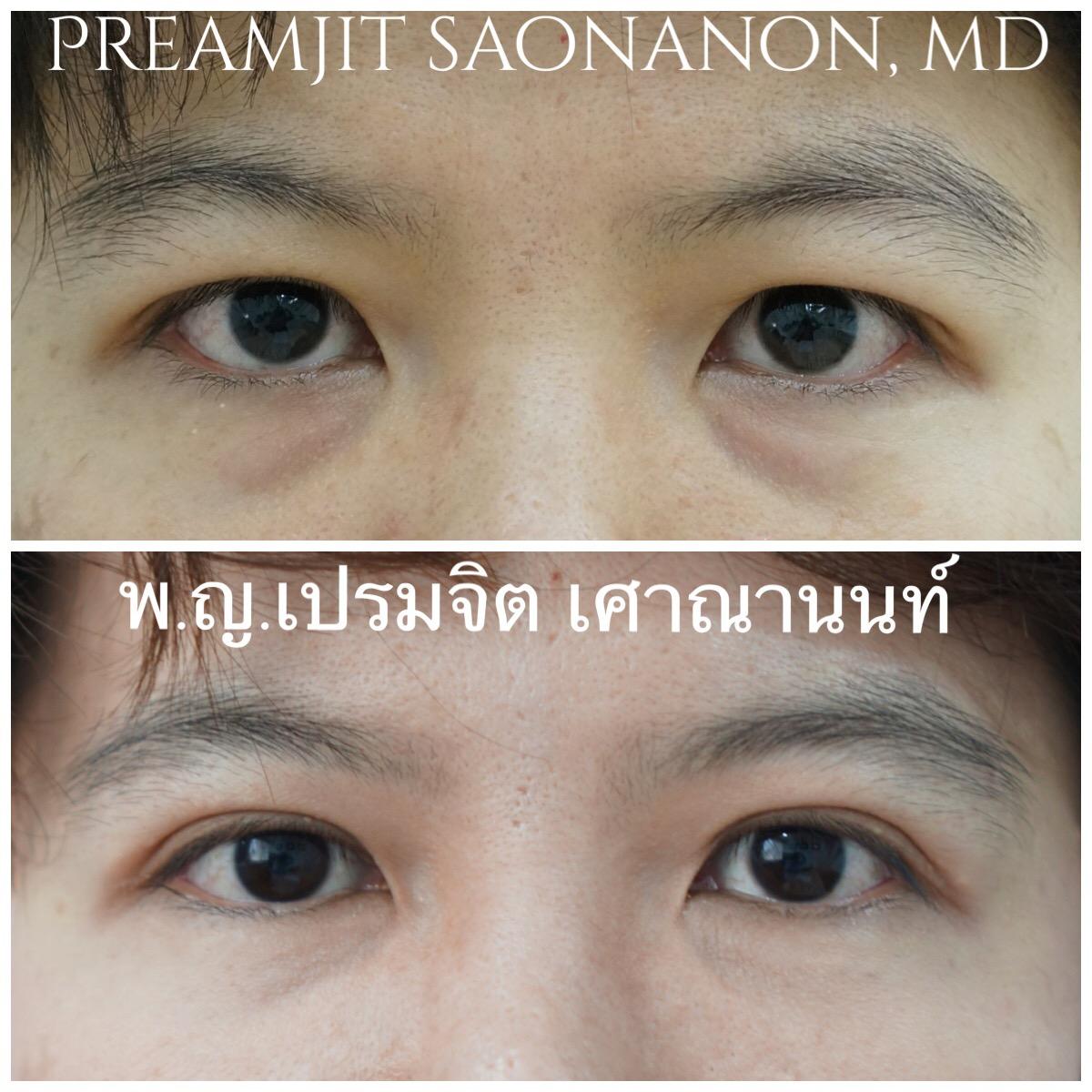 ผ่าตัดตาสองชั้นและถุงใต้ตา