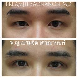 ผ่าตาสองชั้นในผู้ชาย