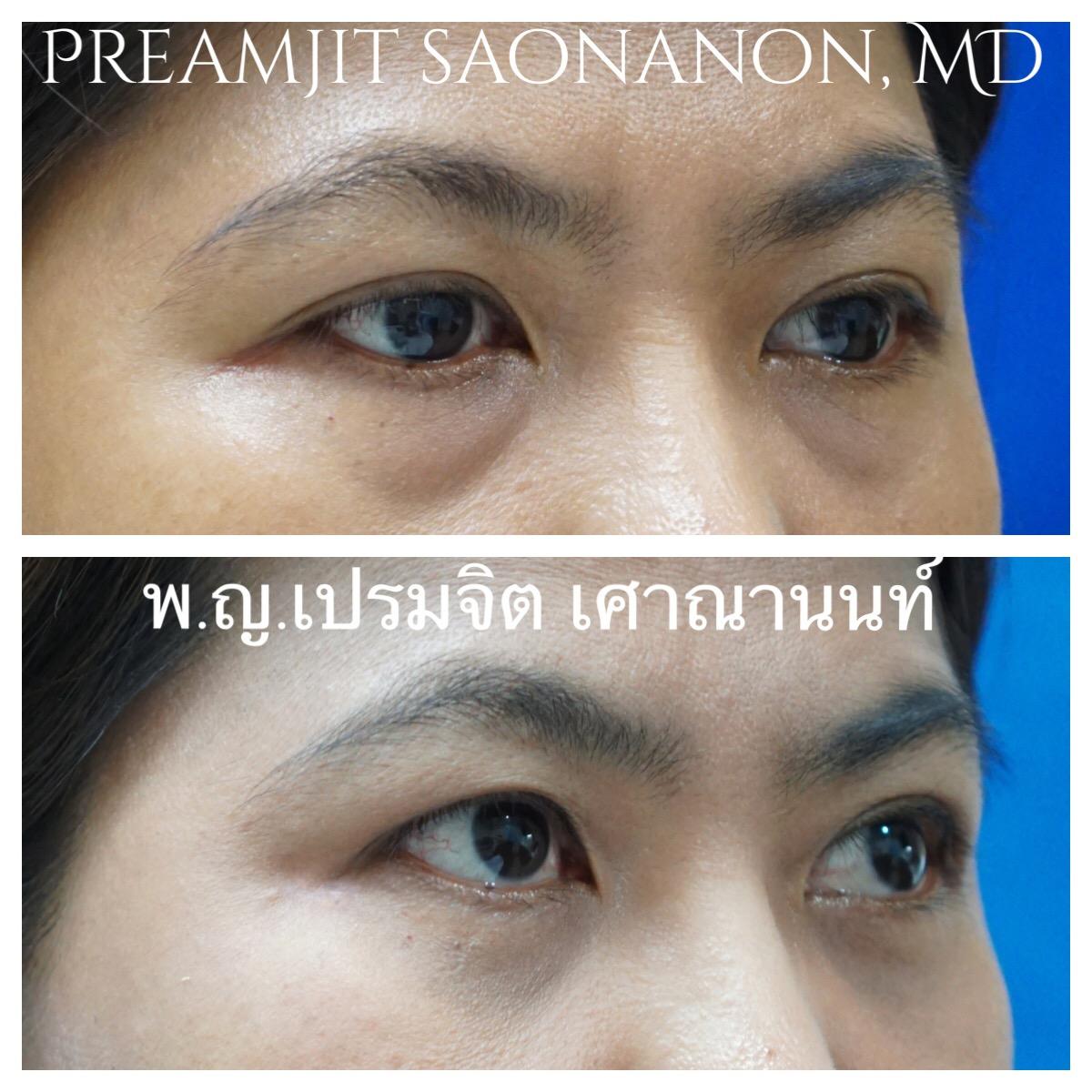 ผ่าตัดถุงใต้ตาและย้ายไขมัน