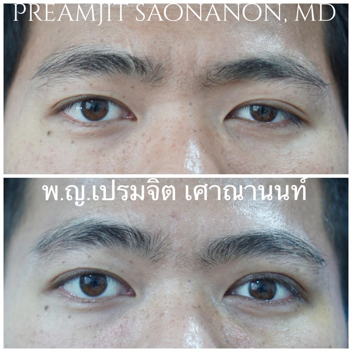 หนังตาตกแต่กำเนิดข้างซ้าย