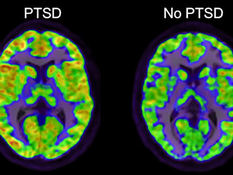 New PTSD Study Identifies Potential Path to Treatment