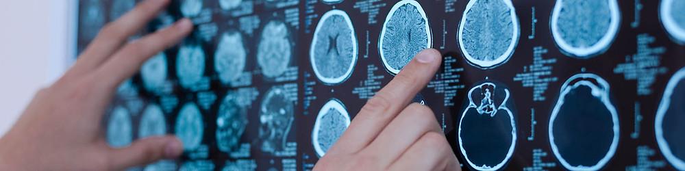 Neurologista em Curitiba; blog de neurologia