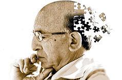 Neurologista em Curitib - Alzheimer