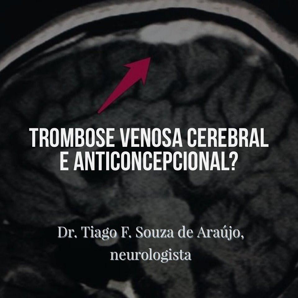 Anticoncepcionais podem causar trombose no cérebro?