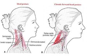 Head Forward Posture Caused by Straight or Reversed Curve