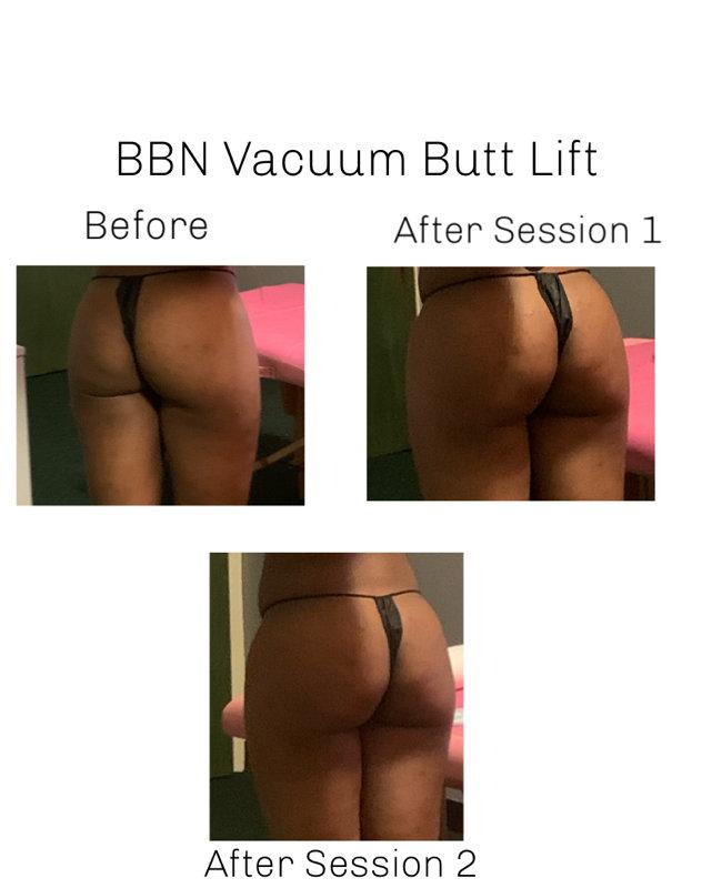 BBN Butt Lift