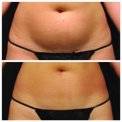 Ultrashape for body contouring