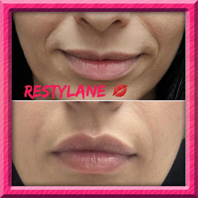 Restylane for lips 💋💋 and nasolabi