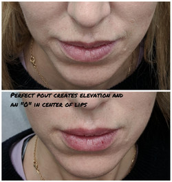 Fillers to lips and nasolabial folds