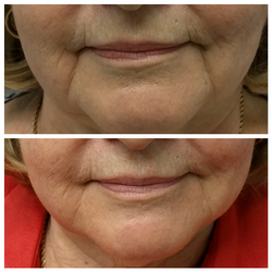 Fillers to marionette lines
