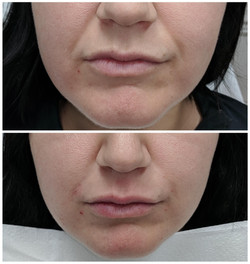 Fillers to lips and NLFs