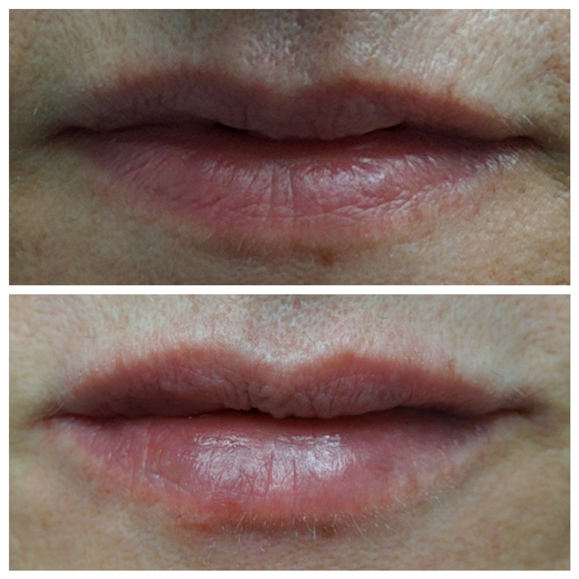 Fillers for natural lips
