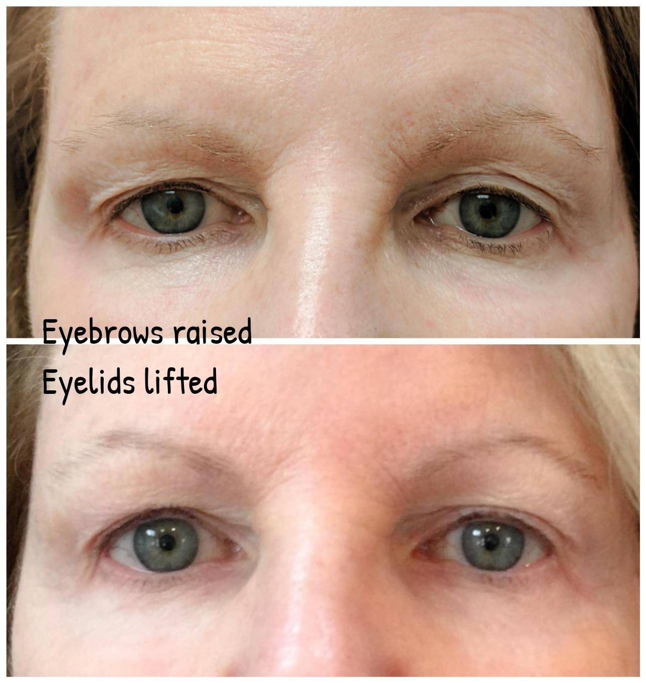Fractora x 2 to lift eyes, rejuvenat
