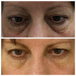 Fillers for under eye hollows