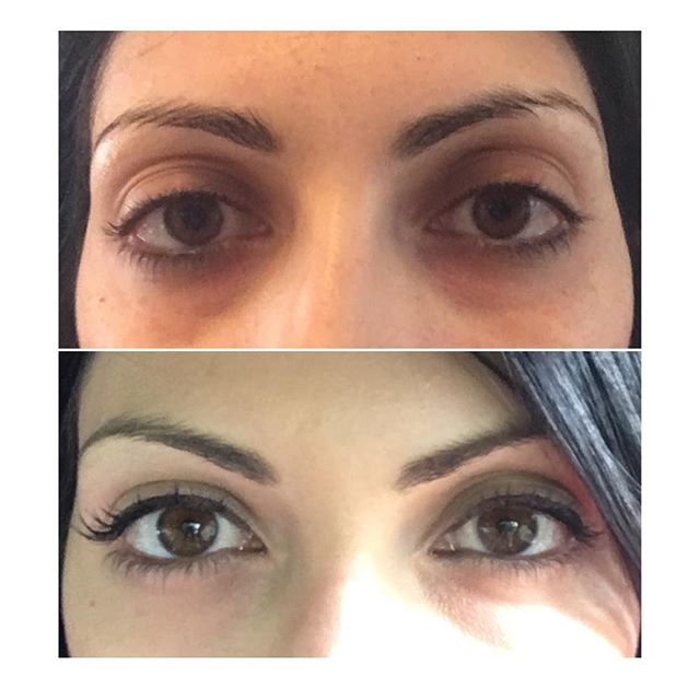 Botox to lift brows and shape eyes