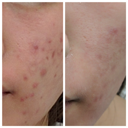 Fractora for active acne and scarrin
