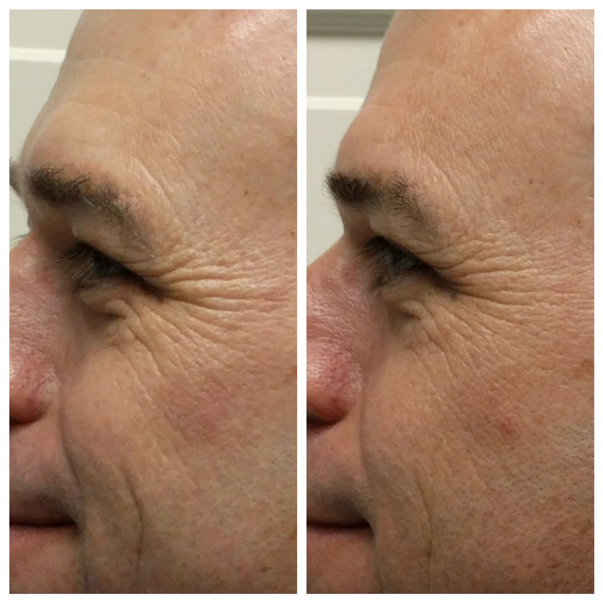 Fractora for crows feet