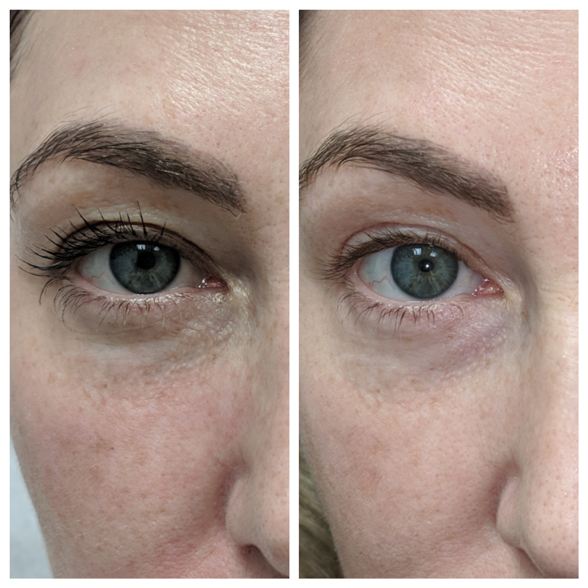 Fractora for natural lift of eyes