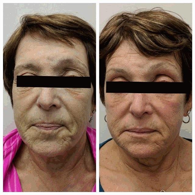 Fractora skin rejuvenation