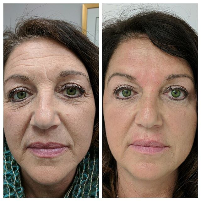 Fillers and dysport makeover