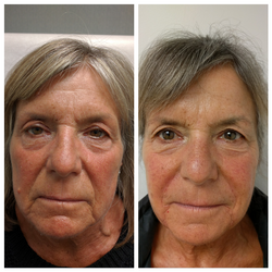 Fillers for instant results