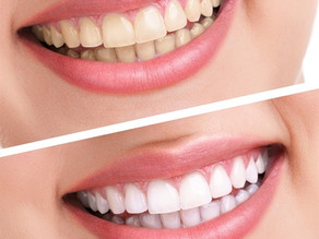 Tooth Whitening or Bleaching