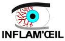 inflamma'oeil.jpg