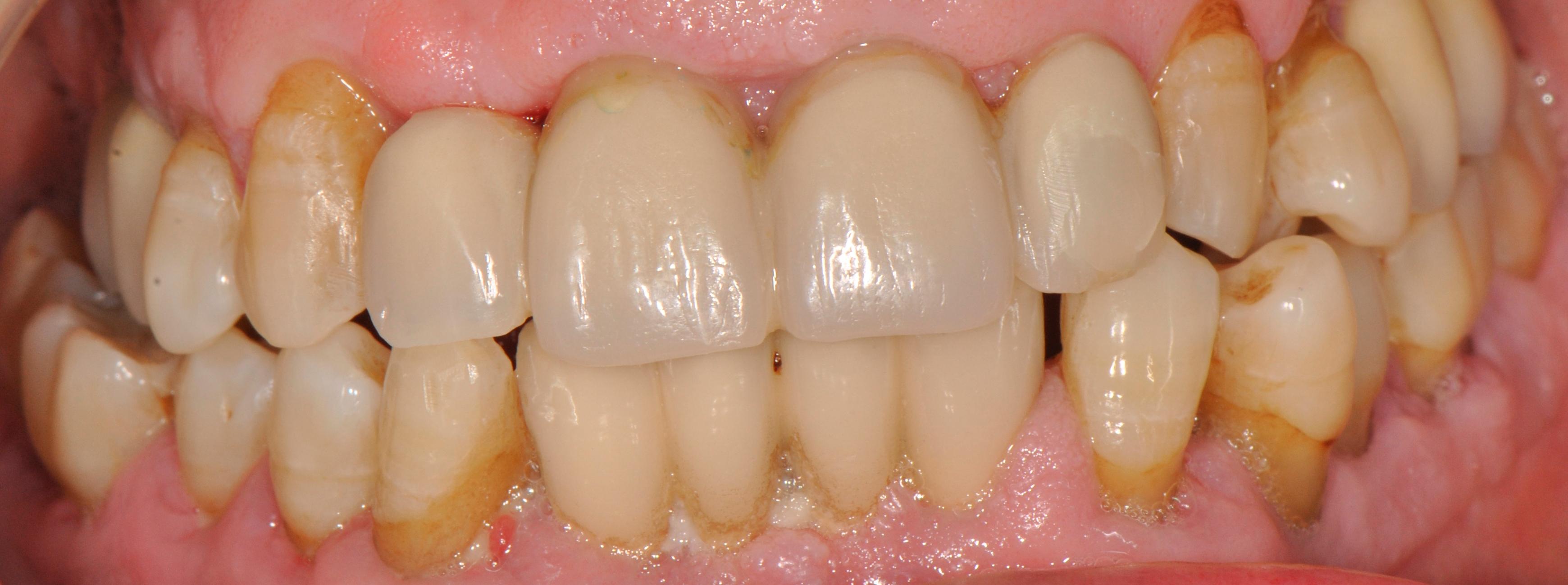 provisionales en boca, tras exodoncia.JPG