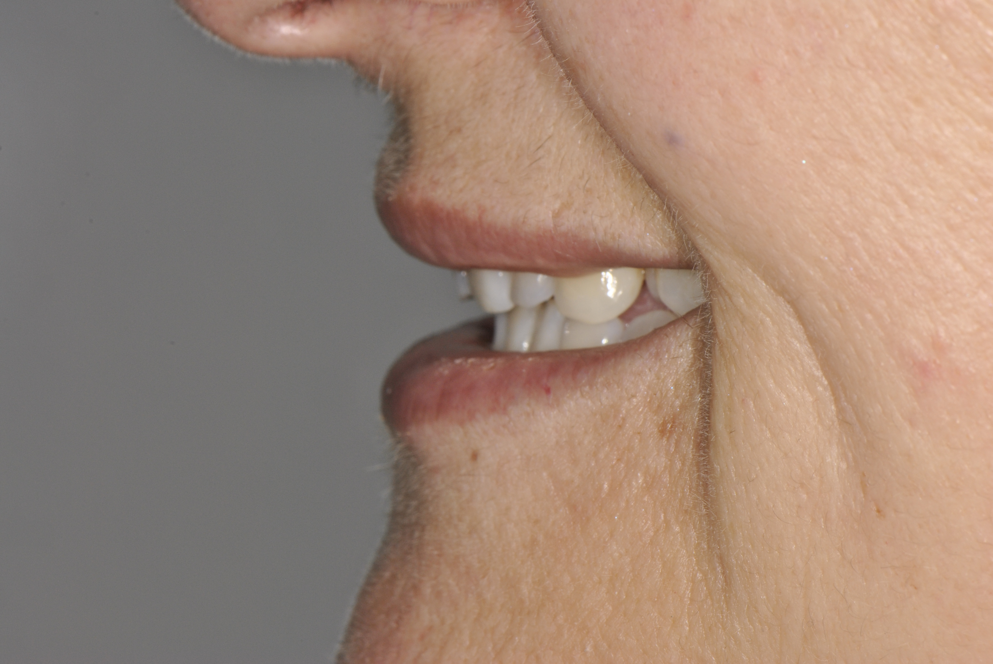 incial lateral