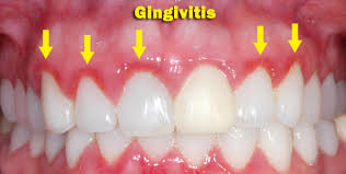 Know the Symptoms of Gingivitis