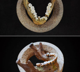 Malocclusion and dental crowding arose 12,000 years ago with earliest farmers
