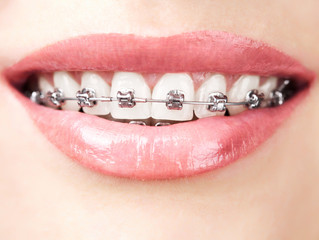 Fun Facts About Braces