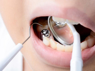 Chemicals in food packaging, fungicides might damage children's teeth