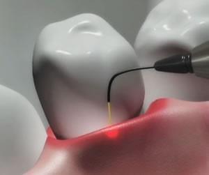 laser-dentistry_edited
