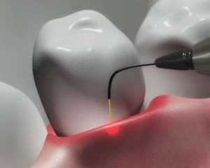 Laser Dentistry: What is Laser Dentistry?