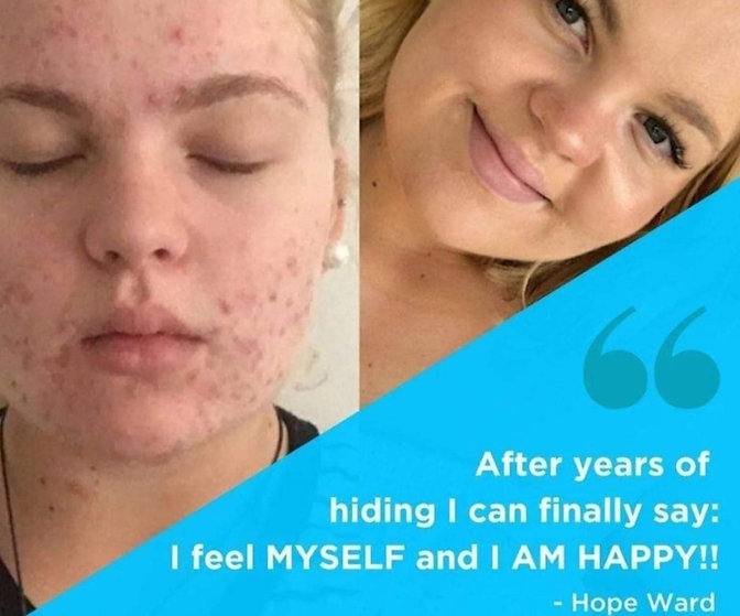 Acne Treatment Soul Soothing Therapy_edited.jpg