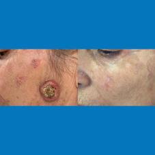 Tumori regiunea faciala