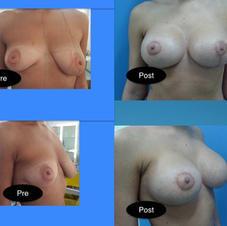 Simetrizare (augmentare si augmentare cu mastopexie)