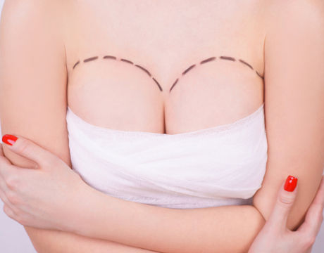 Bandaged breasts with markings before pl