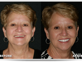 Dentures Dentist in Mooresville NC. Looks Years Younger with Facelift Dentures