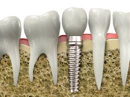 What is a Dental Implant? Dentist in Mooresville NC