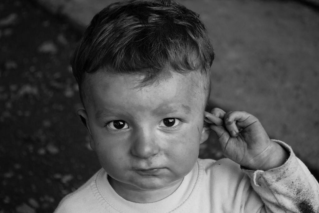 Boy Has Ears
